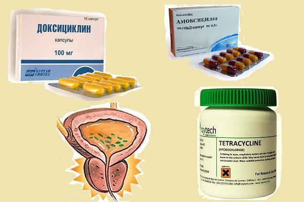 Антибиотики при простатите в домашних условиях