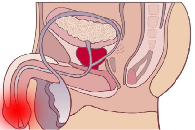 воспалительные процессы возможны при первичном или вторичном баланите