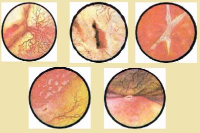 образуются кисты на стенках пузыря, происходит прободение органа, образуются язвы, развивается общая интоксикация организма