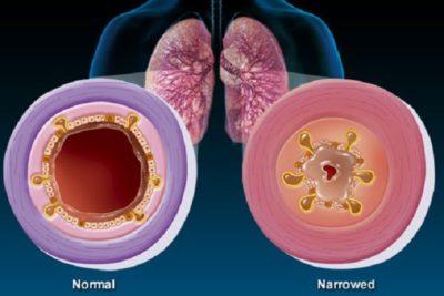 патогенные микроорганизмы - основная причина острого поражения слизистой и воспаления бронхов