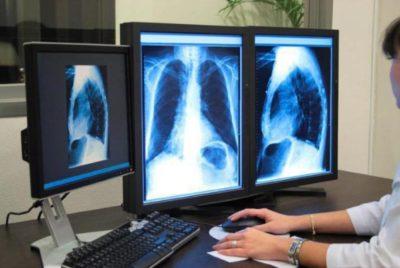 при пневмонии изменения на рентгенограмме обычно обнаруживаются на 72 часу протекания заболевания