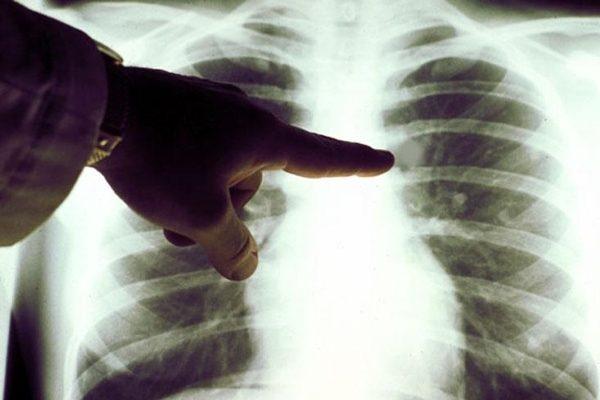 Сколько нельзя кормить после флюорографии грудной клетки