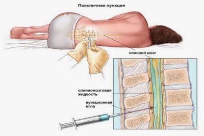 для подтверждения проводят диагностику спинномозговой жидкости