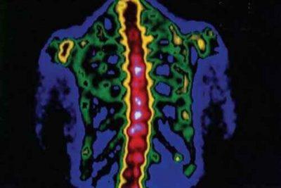 установить точный диагноз можно с помощью радионуклидного обследования