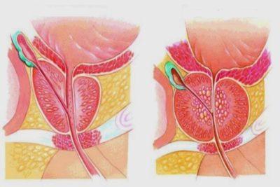 простатит – заболевание, вызывающее тупую, острую боль в области поясницы и таза, возникающее у мужчин из-за воспаления предстательной железы
