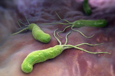 воспалительные процессы яичек или придатков могут быть вирусными или бактериальными