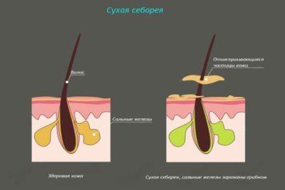 воспаление кожи может вызвать себорею