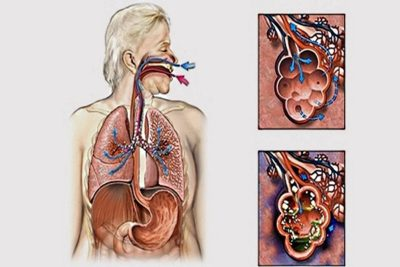 патогенные микробы (пневмококки, стафилококки) обязательно являются причиной воспаления при попадании в альвеолы