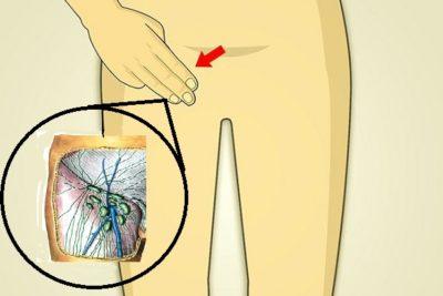 боли внизу живота, в паховой области, мочевого пузыря приобретюет стойкий, упорный характер, могут сопровождаться другими проявлениями