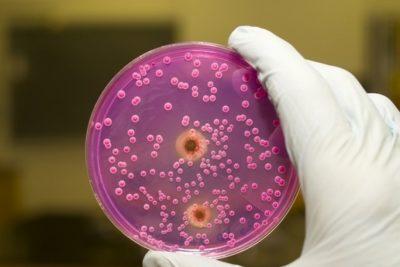 для диагностики важно провести бактериологическое исследование