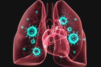 вследствие воспаления легких сердечно-сосудистая система прекращает правильно функционировать