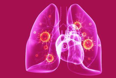 пневмония - острое очаговое воспаление легочной ткани, имеющее инфекционную природу