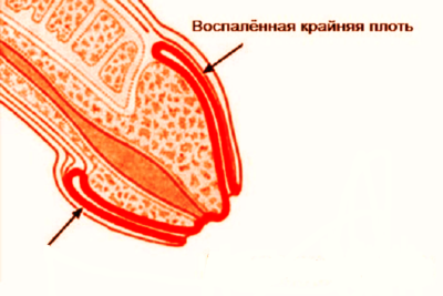 появление признаков воспаления крайней плоти должно служить поводом посещения врача