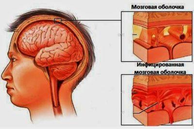 менингит возникает в любом возрасте, но преимущественно поражает детей и людей с ослабленным иммунитетом