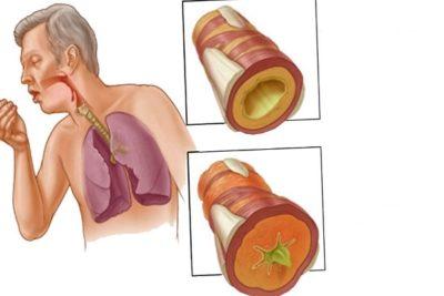 среди осложнений воспаления легких в первом ряду стоит хронический бронхит