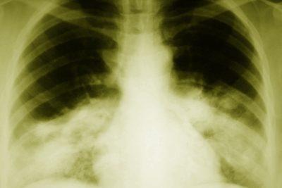 выделяют несколько морфологических стадий воспаления легких