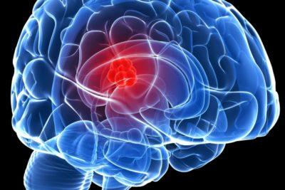 абсцесс головного мозга – это ограниченное воспалительное очаговое поражение мозговых тканей