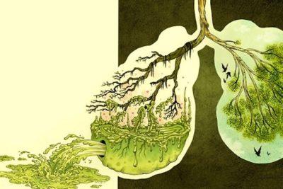 пневмония может протекать без кашля, высокой температуры