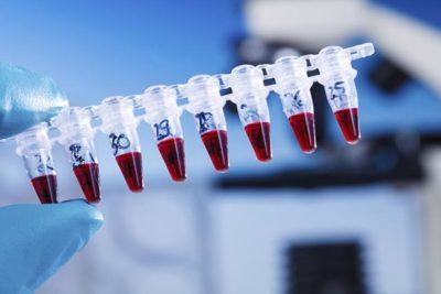 обязательным является диагностика на полимеразную цепную реакцию для определения ЗППП