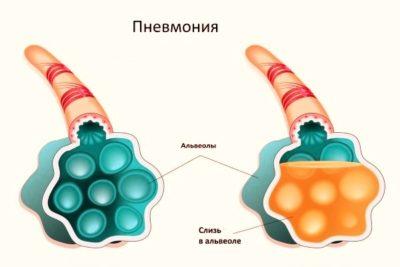 заражение появляется при попадании бактерий непосредственно в альвеолярную часть бронхолегочной системы