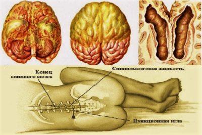 при любом виде менингита требуется исследование спинномозговой жидкости, после чего назначается лечение