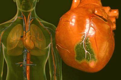 осложнением на сердце при пневмонии может стать миокардит