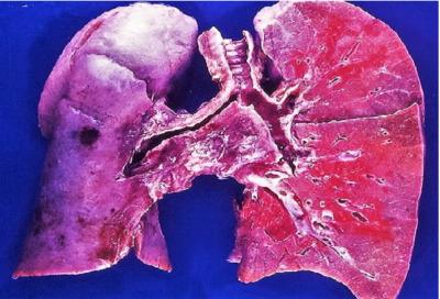 воспаление легких является осложнением болезней верхних дыхательных путей