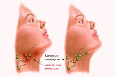 симптомом воспаления лимфоузлов является их увеличение в размерах