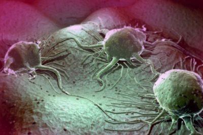 опухоли – частые причины воспалительных процессов синусов и сосудистой сетки головного мозга