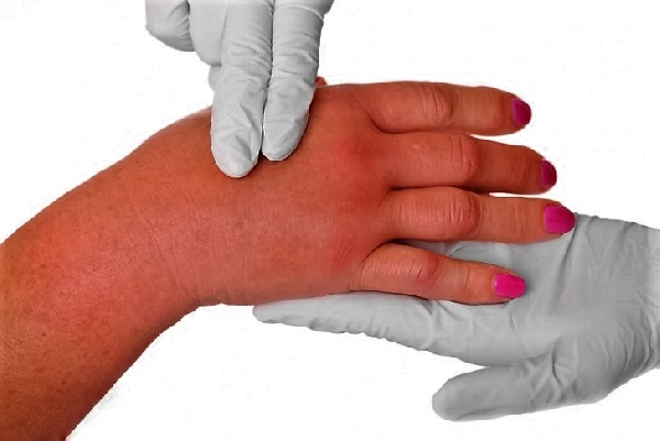 Рожистое воспаление руки при лимфостазе