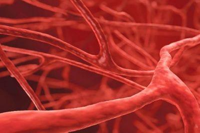 васкулиты имеют разные причины и, соответственно, симптомы, часто помогающие врачам правильно поставить диагноз