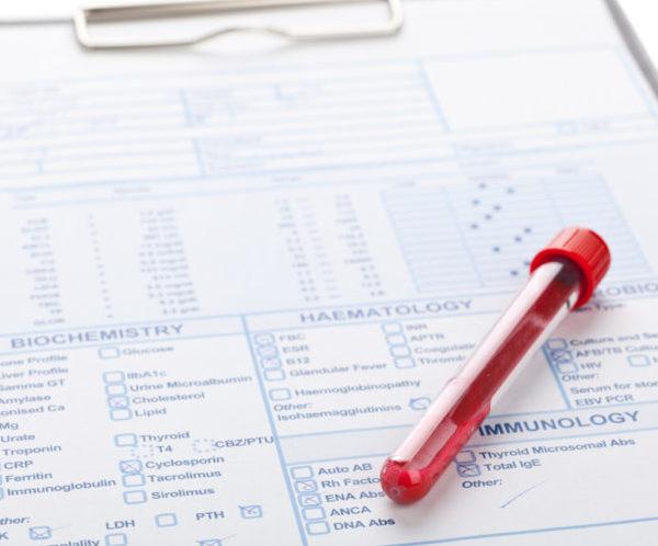Расшифровка анализа крови