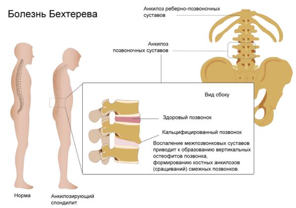 Остеохондроз коленного сустава симптомы