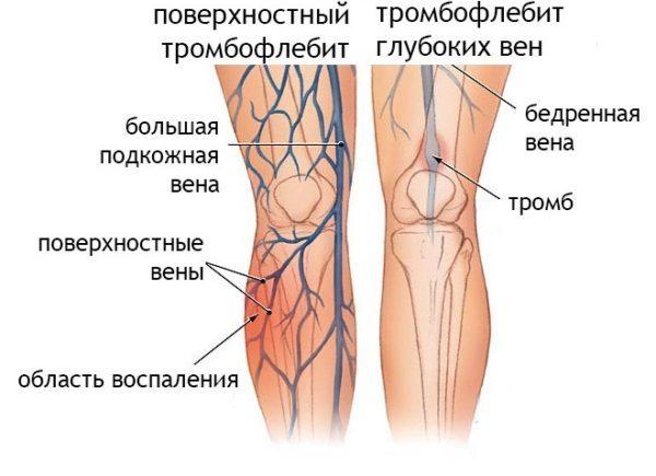 Главные симптомы воспаления вен и существующие методы лечения
