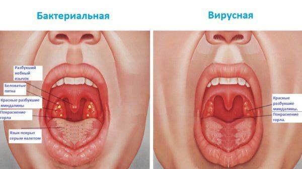 Пневмония у ребенка.