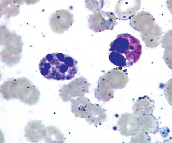 Нейтрофильные гранулоциты