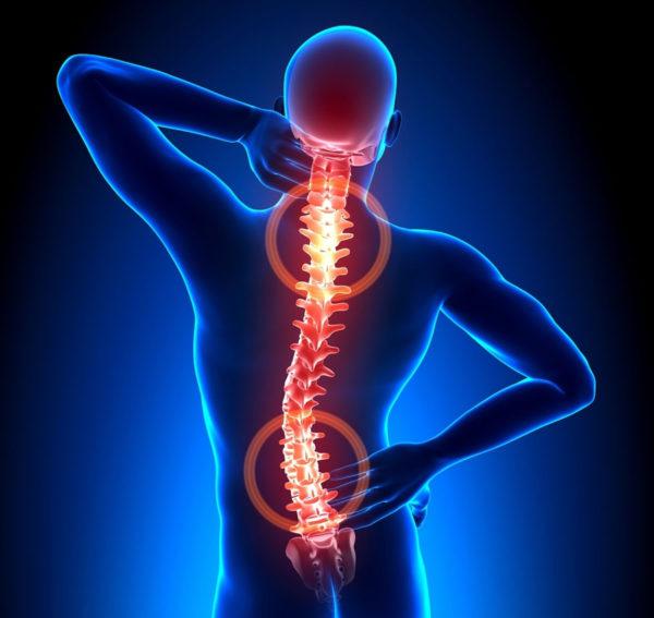 Как Снять острая боль нога отнимается остеохондроз что делать