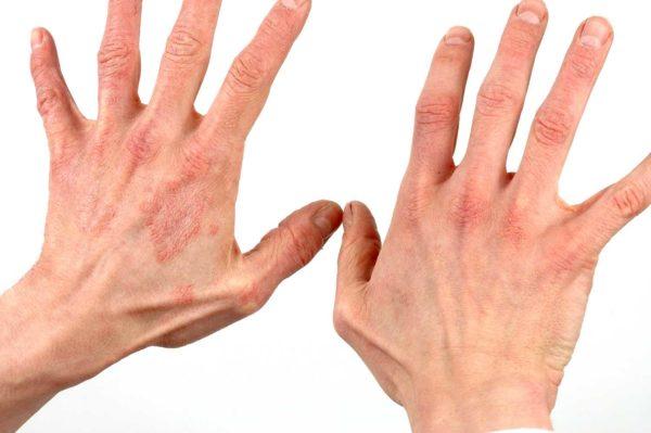 рожистое воспаление на руке