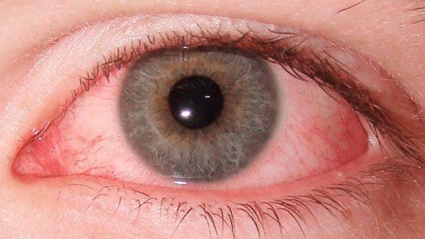 Воспалились глаза как лечить в домашних условиях