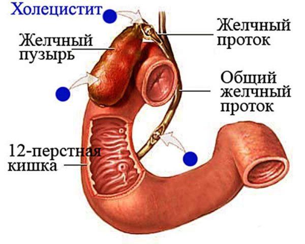 противовоспалительные средства при воспалении желчного пузыря