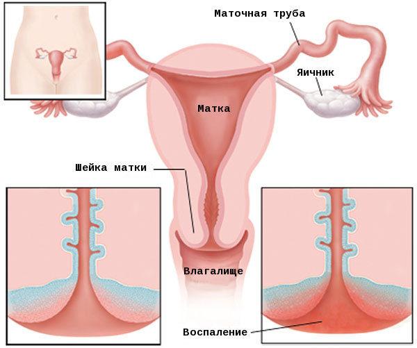 Причины и методы лечения воспаления шейки матки