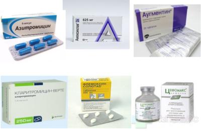 лечение пневмонии проводят антибиотиками с широким спектром действия