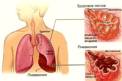 крупозную пневмонию вызывают пневмококковые инфекции