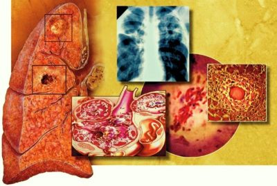проявление признаков пневмонии во многом зависит от объёма поражения