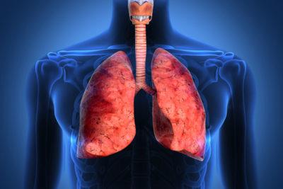 лечение пневмонии народными средствами должно проводиться по согласованию с лечащим врачом и в комплексе с антибиотиками