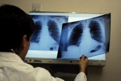 снимки, сделанные на рентгеновской установке или в кабине флюорографии совершенно разные