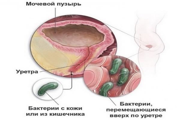 Воспаление мочевого пузыря при беременности: причины и лечение