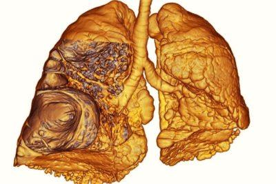 во время диагностики слышны сухие или влажные хрипы, глухой звук, то можно судить о наличии очага воспаления в одной или двух долях лёгких