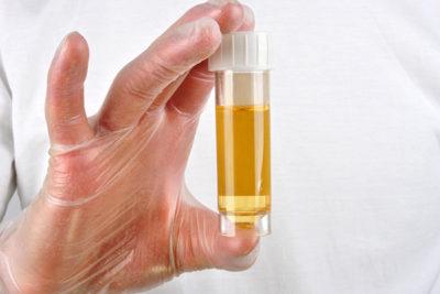 общий анализ мочи позволяет выявить бактериальную инфекцию в организме