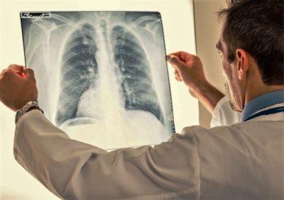 своевременная диагностика, курс медикаментозной терапии дают возможность избежать осложнений на сердце